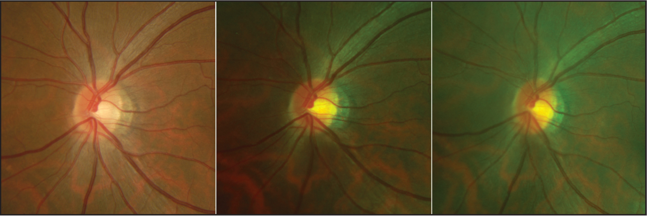 Optic disc images of the same eye. The left image was taken with a Topcon retinal camera, middle image with the Optos ultra-widefield system with the head in a conventional position, and the right image taken with the Optos ultra-widefield system with head in the 90° rotated position with the resulting image rotated back.