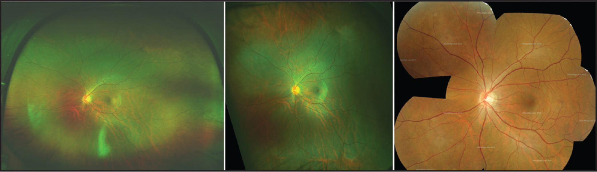 Widefield color fundus images of the same eye taken with the Optos ultra-widefield system and a seven-field Topcon retinal camera montage. Left image: central Optos ultra-widefield color fundus image taken with the head in a conventional position. Middle image: central ultra-widefield image taken with the head rotated 90° and the image is then rotated back. Right image: seven-field montage of 35° Topcon retinal camera color fundus images. The peripheral retina imaged using the Optos ultra-widefield images is wider compared to the seven-field image, as one would expect. Comparing the two Optos ultra-widefield images, the right image has a clear and wider view of the nasal and temporal retina but limited vertically. This is the opposite in the middle image, with a clear and wider view of the superior and inferior retina but limited horizontally.