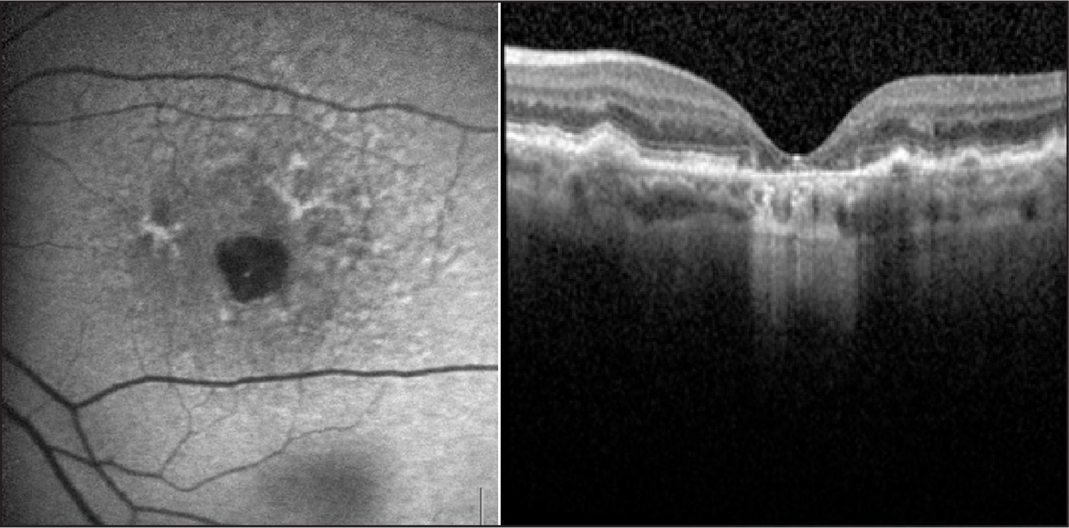 Retrofoveal atrophy in the left eye of a 76-year-old woman with pattern dystrophy. Left: Left eye fundus autofluorescence image with a foveal hypofluorescent lesion corresponding to retinal atrophy, surrounded by hyperautofluorescent lesions corresponding to materiel deposits. Right: Corresponding spectral-domain optical coherence tomography scan reveals thinning of retinal layers and choroidal signal enhancement.
