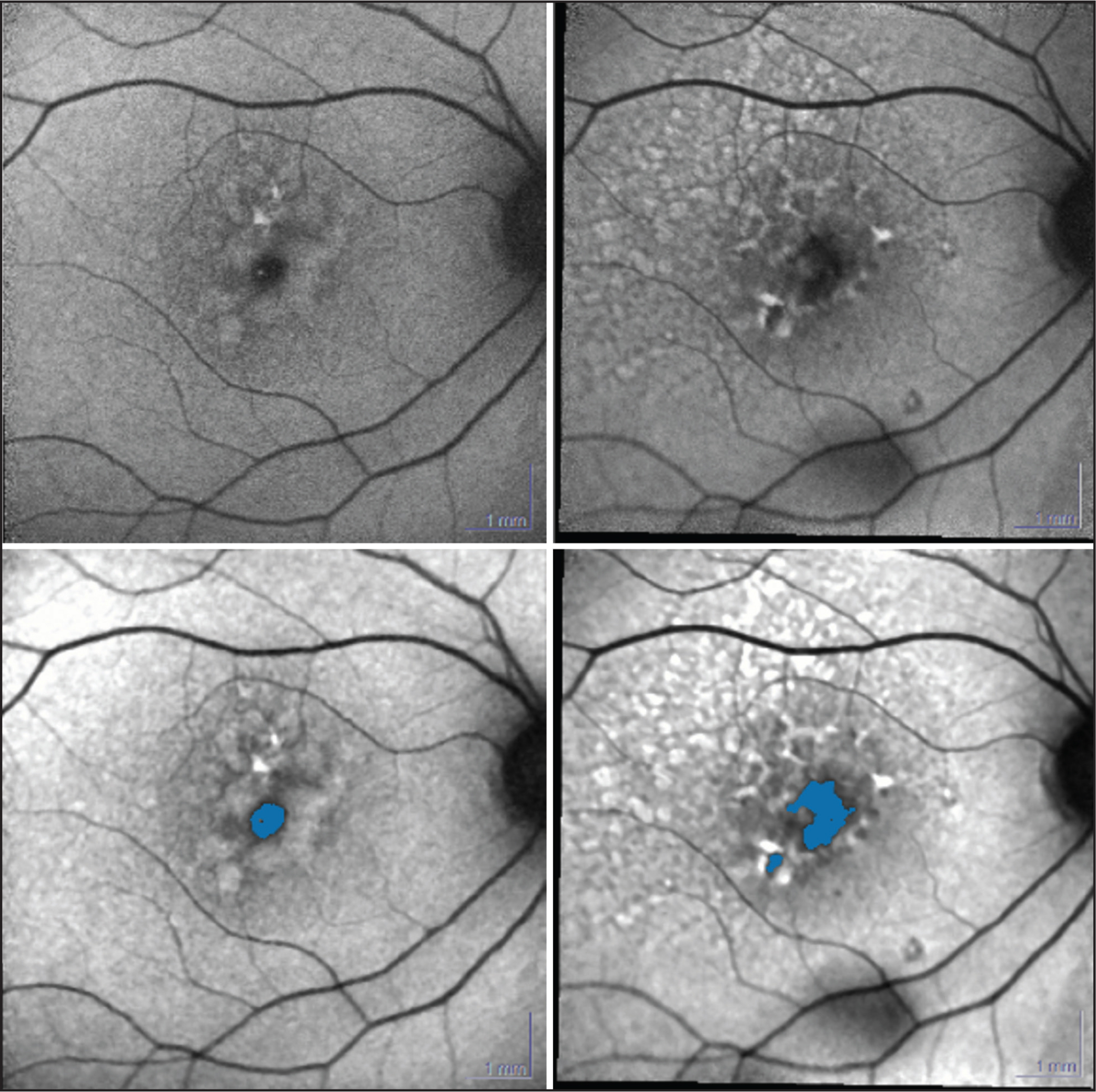 Progression of retinal pigment epithelium (RPE) atrophy in a 76-year-old woman with pattern dystrophy, using RegionFinder software. Top left: initial blue laser autofluorescence image. Top right: final autofluorescence image. Bottom left: RegionFinder software analysis corresponding to the image at the top and left. Bottom right: RegionFinder software analysis corresponding to the image at the top and right.