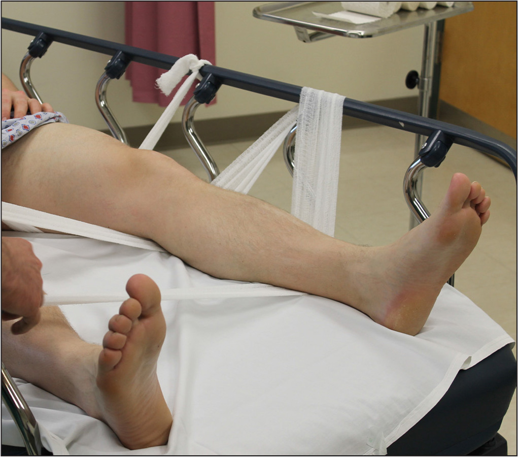 Leg Hammock For Closed Reduction Of Tibial Shaft Fractures