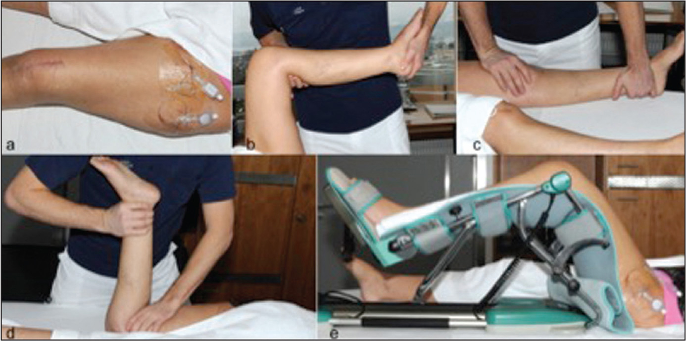 novel protocol for knee mobilization under femoral and sciatic, Muscles