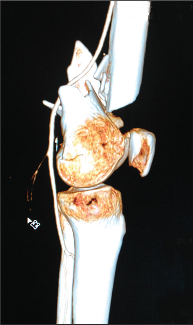 Sagittal computed tomography scan with 3-dimensional reconstruction showing contusion of the left popliteal artery in a 50-year-old woman with an open supracondylar femoral fracture. The pulse returned after reduction of the fracture.