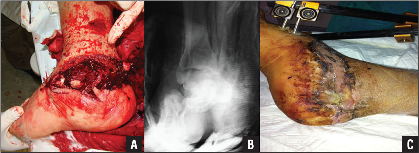 Preoperative photograph (A) and anteroposterior radiograph (B) of the ankle joint showing an open fracture-dislocation of the midtarsal (Chopart) joint of the right foot in a 35-year-old man. Surgical exploration after reduction and stabilization of the fracture-dislocation with external fixation showed transection of the posterior tibial artery that was repaired with end-to-end anastomosis. Photograph showing the foot 10 days after closure with a split-thickness skin graft (C).