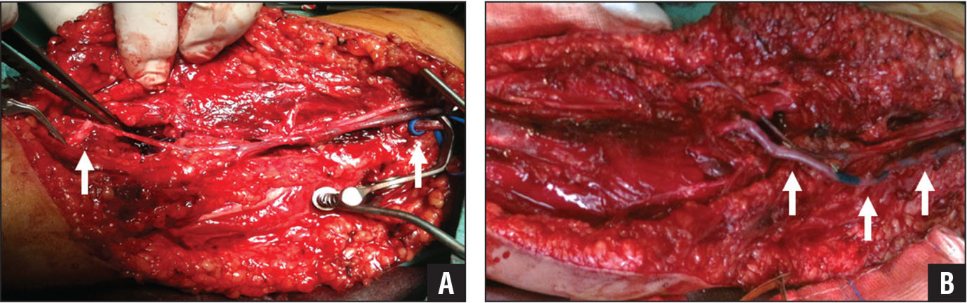 Intraoperative photograph showing transection of the right brachial artery in a 6-year-old boy with a humeral diaphysis fracture; the arrows indicate the proximal and distal parts of the artery (A). Intraoperative photograph showing successful reconstruction of the brachial artery with a reversed saphenous vein bypass graft (arrows) (B).