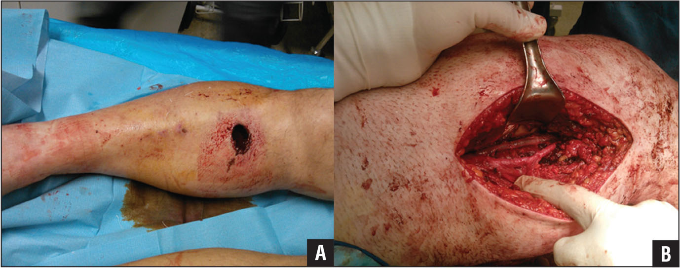 Preoperative photograph showing an intima tear of the right posterior tibial artery in a 52-year-old man with a gunshot open tibial fracture (A). Intraoperative photograph showing surgical repair and fasciotomies performed through the posterior approach to the leg (B).