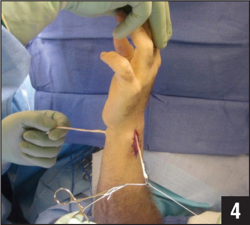 Photograph showing passing tendon graft across distal radius tunnel.