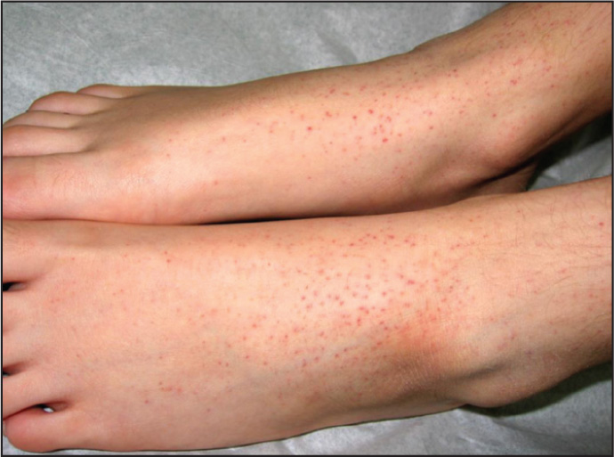 Raised Rash On Trunk And Top Of Legs 67