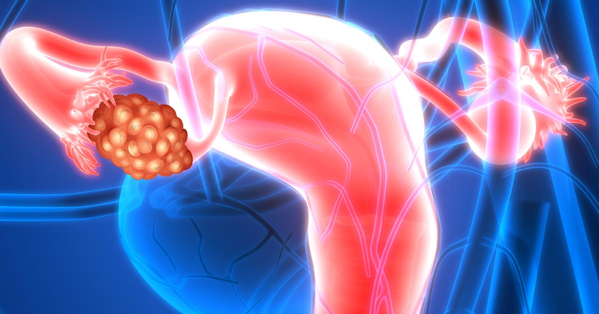 Pembrolizumab Shows Modest Durable Response In Recurrent Ovarian Cancer