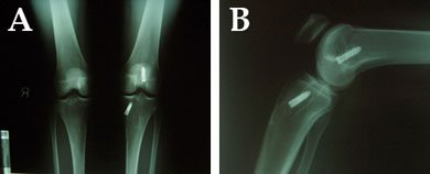 Anteroposterior (AP) and lateral radiographs of a patient with recurrent instability following anterior cruciate ligament reconstruction. Screw divergence, (A) midline (near 12 o'clock) and (B) slightly anterior position, is noted with respect to the femoral tunnel. Tunnel widening is noted on the tibial side