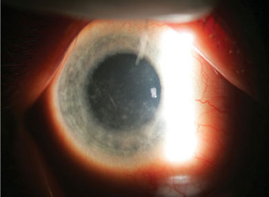 This patient swims in lakes with her contact lenses in place. In this eye with early acanthamoeba keratitis, a patchy, stippled corneal epithelium is seen with a faint infiltrate adjacent to a corneal nerve