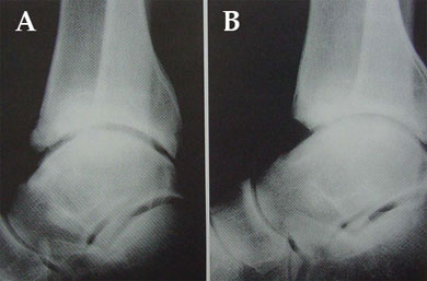 (A) Anterior osteophyte with tibiotalar angle more than 60 degrees. (B) Postresection
