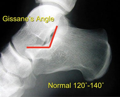 Lateral view depicting Gissane's angle