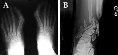 Two starkly contrasting cases. (A) Elective first tarsometatarsal fusion in a healthy young adult where bone graft is not needed, compared to (B) a high-energy open pilon fracture in a smoker that will require bone grafting and osteobiologic augmentation