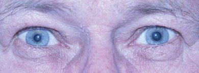 Right Horner syndrome. There is slight decrease of the palpebral fissure on the right and the right pupil is smaller than the left pupil