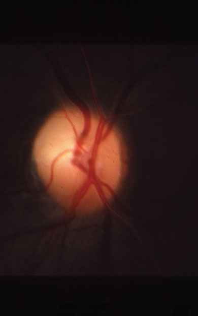 Note the superior altitudinal optic atrophy in a patient with previous NAION