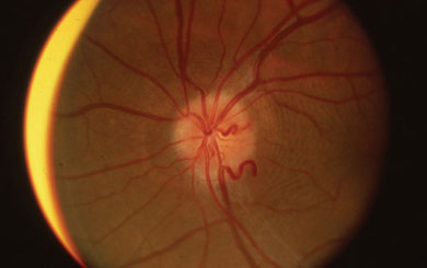 Optociliary collateral vessels in a patient with an optic nerve sheath meningioma