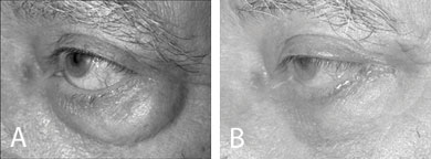 (A) A patient with prominent globes before lower eyelid blepharoplasty. (B) To avoid retraction, fixation of the SOOF and a lateral tarsal strip procedure were performed in addition to a standard transcutaneous blepharoplasty