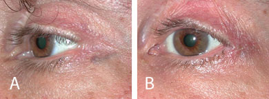 Lateral canthal blunting following blepharoplasty before (A) and after (B) reparative lateral canthoplasty