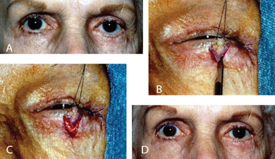 "Contour abnormality due to focal scarring of the left lower eyelid (A). The area of scarring is released with a ""V-shaped"" incision (B). The eyelid is then able to be elevated to a normal position and the incision sutured in a ""Y"" configuration (C). The eyelid is in a more natural position (D) following the ""V-Y"" advancement flap"