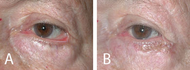 (A) Ectropion following lower eyelid blepharoplasty. (B) Improved eyelid position
