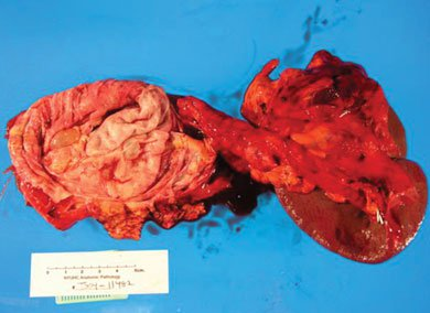Specimen of resection leading to splenectomy due to infiltration of the splenic vein by the cystic mass