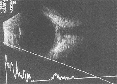 Characteristic T-sign on B-scan US in case of posterior scleritis