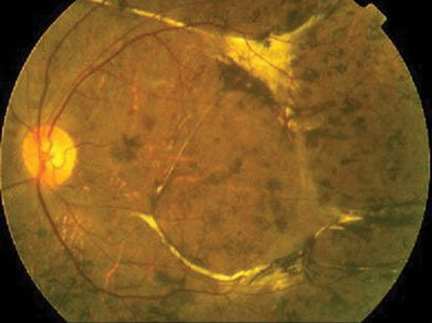 Fundus photograph demonstrating multiple chorioretinal scars and subretinal fibrosis