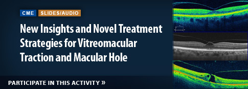 New Insights and Novel Treatment Strategies for Vitreomacular Traction and Macular Hole