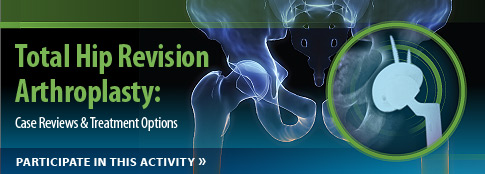 Total Hip Revision Arthroplasty: Case Reviews & Treatment Options