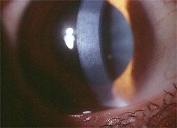 wahl zielrefraktion myopie