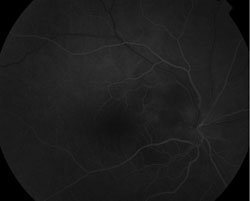 Figure 2. Fluorescein angiography demonstrating leakage of the right optic nerve without evidence of vasculitis.