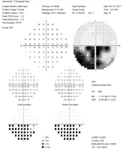 Figure 3. Humphrey 30-2 visual field tests demonstrating a right inferior altitudinal defect.