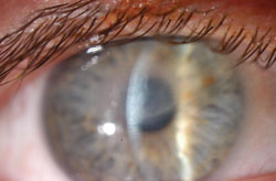Slit beam photo of the right eye