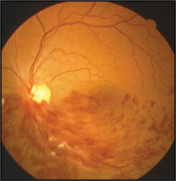 This patient with ischemic hemispheric retinal vein occlusion had a BMI of 37 kg/m2, blood pressure of 158/98 mm Hg, no history of diabetes and smoked a pack of cigarettes a day.