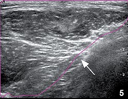 Figure 5: Ultrasound of the myotendinous junction of the latissimus dorsi muscle 3 months from surgical repair