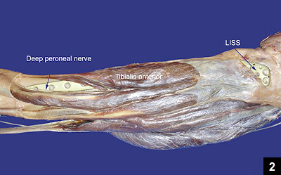 Related Pictures anterior muscles of the human body