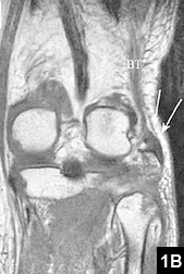 Figure 1B: An avulsion fracture
