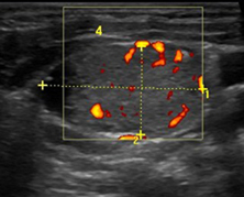 Non Thyroid Cystic Masses Identified On Neck Ultrasound