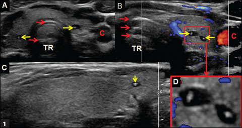 Comet Tail Cat Eye And Colloid Clot Artifact Found In Thyroid Nodules
