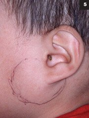 Figure 5: A patient with acute suppurative parotitis.