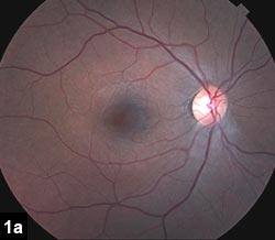 Figure 1a: Fundus photograph