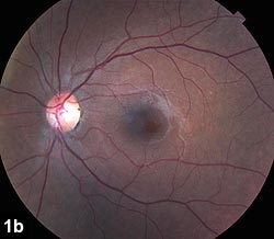 Figure 1b: Fundus photograph