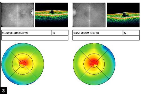 Figure 3: OCT images of the macula in both eyes.