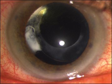inflammation 6 weeks after cataract surgery