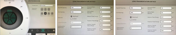 Customized settings for dense cataracts