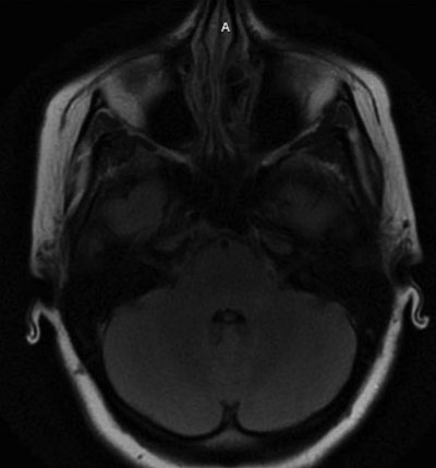 Brain MRI T2 axial FLAIR sequence performed before patient's presentation