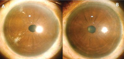 Clinical picture comparing post-PDEK eye and the fellow normal eye