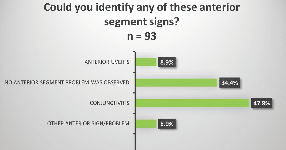 anterior segment signs