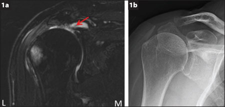 Preoperative MRI shows full-thickness supraspinatus tear